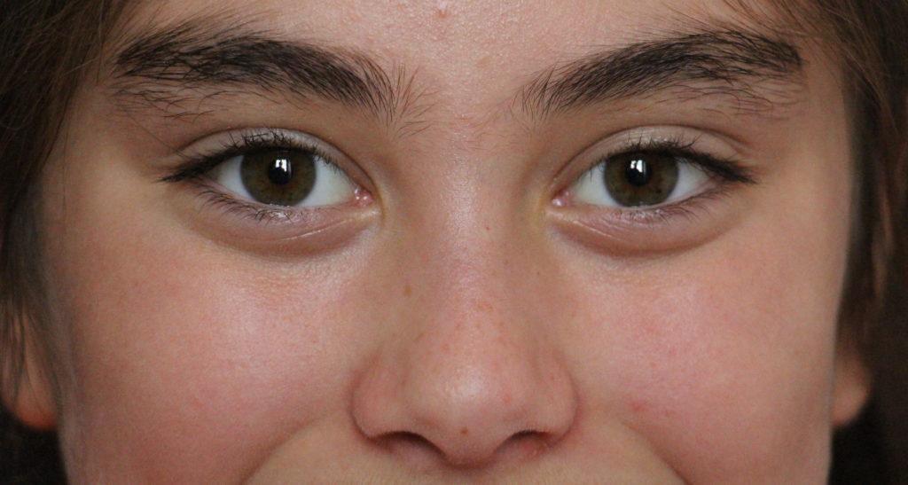 thérapie et traumatismes par les mouvements oculaires. cotes d'armor hypnotherapie 22